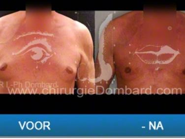 Liposculptuur liposuctie gynaecomastie.