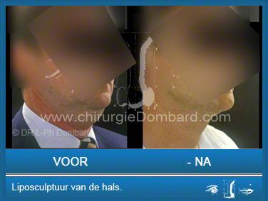 Liposculptuur liposuctie van de hals.