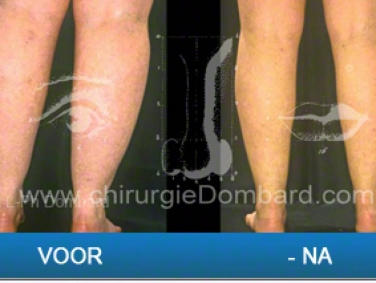 Liposculptuur van knieën, kuiten, enkels. Resultaat na 6 maanden.
