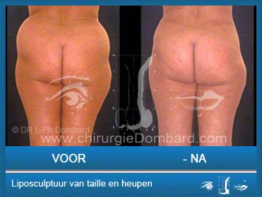 Liposculptuur liposuctie van taille en heupen.