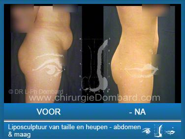 Liposculptuur liposuctie van taille en heupen ) abdomen & maag.