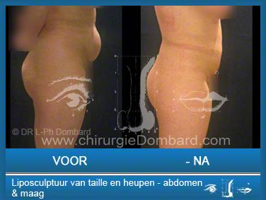 Liposculptuur liposuctie van taille en heupen - abdomen & maag.