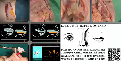 Neuscorrectie Master cursus DR L-Ph. Dombard