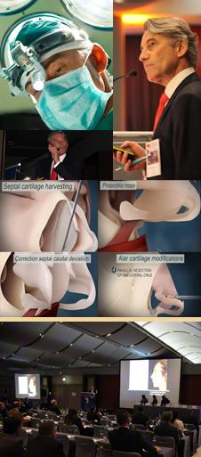 Secundaire neuscorrectie hersteloperatie België Belgique - Doctor Dombard.