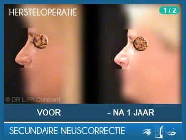 Secundaire neuscorrectie Hersteloperatie Voor -Na 1 Jaar