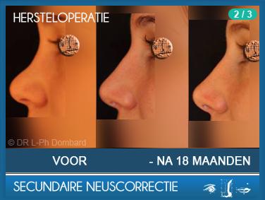 Secundaire neuscorrectie Hersteloperatie Voor -Na 18 Maanden