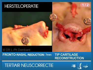 Tertiair neuscorrectie Hersteloperatie Operatie