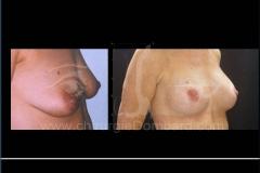 Seins Proteses mammaire E