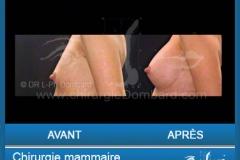 Chirurgie esthétique des seins - Lifting des seins - chirurgie mammaire
