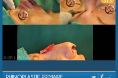 Rhinoplastie Primaire - First Rhinoplasty - Neuscorrectie