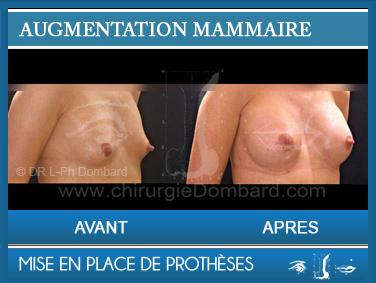 Augmentation mammaire - Photo Avant Apres