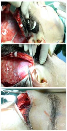 Clinique Dombard - Chirurgie esthétique et plastique