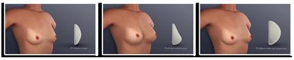 Augmentation mammaire. Prothèses mammaires les différentes formes.