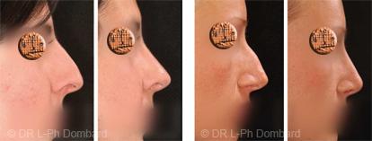 Rhinoplatie prix - chirurgie du nez Prix