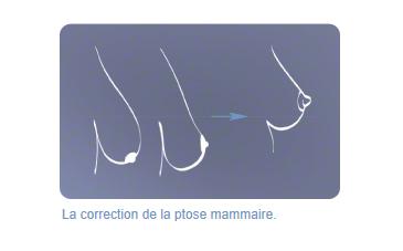 Ptose mammaire - Chirurgie esthetique DR Dombard