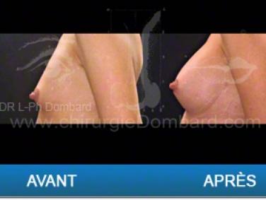 Chirurgie mammaire chirurgie des seins Ptose mammaire varia - DR Dombard Bruxelles - Belgique