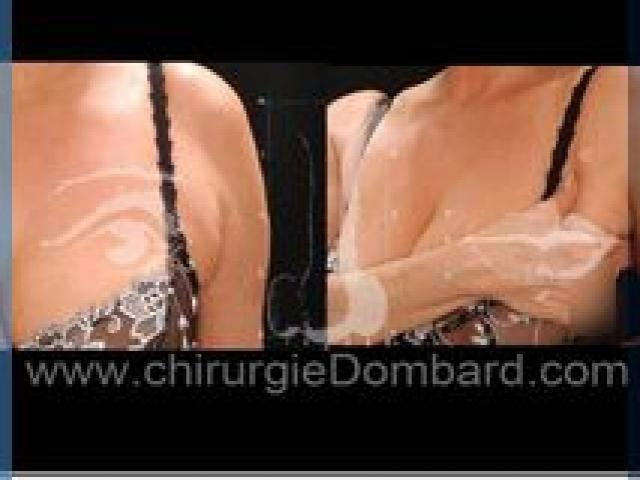 Liposculpture (liposuccion) axillaire et paroi latérale des seins - DR Dombard Bruxelles Belgique