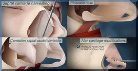 rhinoplastie-neuscorrectie-dr-dombard