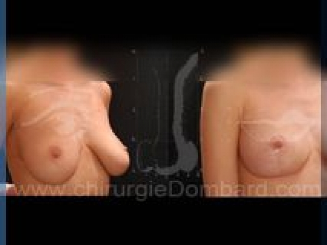 Chirurgie mammaire chirurgie seins Ptose mammaire seins tombant - DR Dombard Bruxelles - Belgique