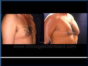 Avant – Après – Chirurgie mammaire chirurgie seins pour homme Les pectoraux - DR Dombard Bruxelles - Belgique