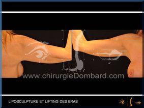 Liposculpture (liposuccion) dermolipectomie des bras - DR Dombard Bruxelles Belgique