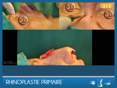 Rhinoplastie Primaire - Pendant l'opération.