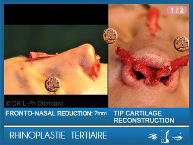 Rhinoplastie Tertiaire: Pendant la reconstruction du nez.