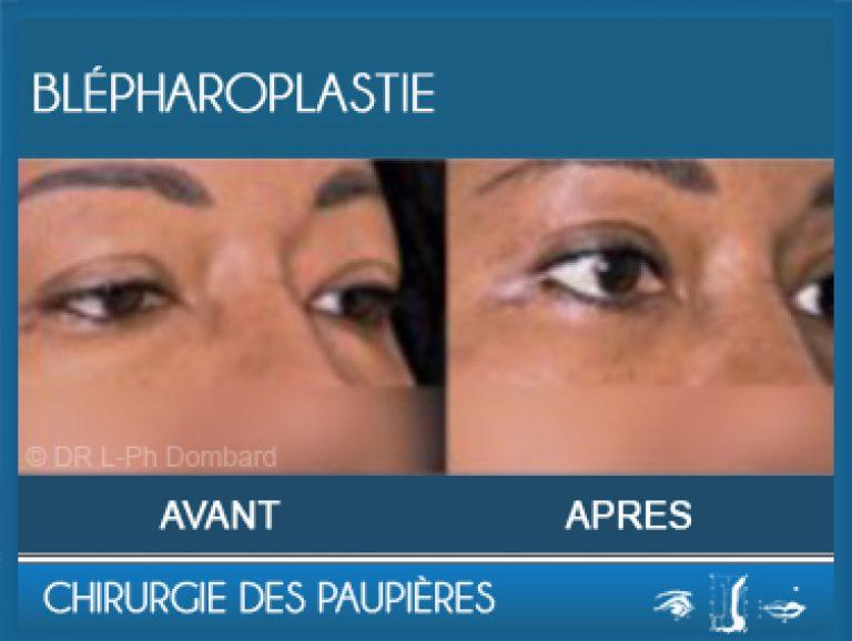 Chirurgie des paupières - Blépharoplastie