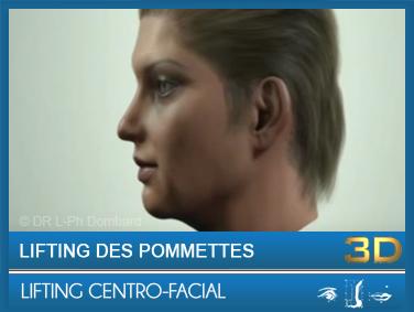 Lifting Centro-facial - Lifting des pommettes