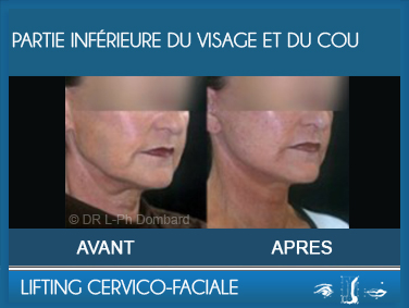 Lifting Cervico-Faciale - Partie inferieure du visage et du cou