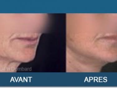 Lifting cervical - Lifting du cou