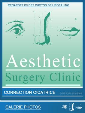 lipofilling-correction-cicatrice