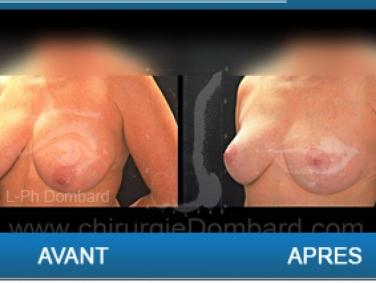 Ptoses mammaire, chirurgie des seins qui tombent.