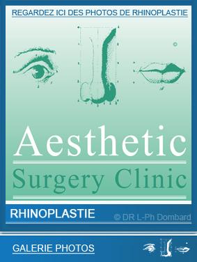 rhinoplastie - Chirurgie du nez