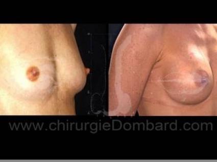 Avant - Après. Vue 3/4. 240cc. Prothèse ronde rétro-glandulaire. Résultat à 2 ans.Seins Proteses mammaire