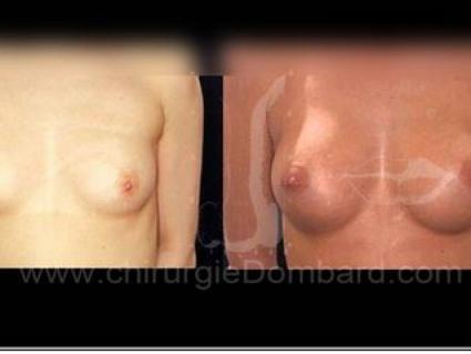 Avant-Après. Vue de face. 225cc. Prothèse ronde rétro-glandulaire. Résultat à 1 an. Seins Proteses mammaire