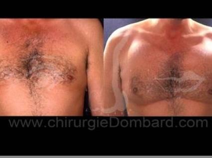 Avant - Après. Vue de face. Implants pectoraux. Face profil. 600gr. 2 ans