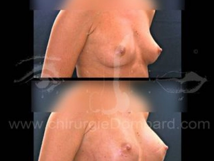 Prothèse ronde rétro-musculaire. 2 mois. Seins Proteses mammaire