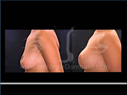Séquelles de chirurgie mammaire. Correction + prothèse. Seins Proteses mammaire