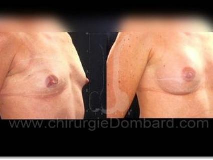 Avant - Après. Vue 3/4. Implants anatomiques rétro-glandulaire. Seins Proteses mammaire