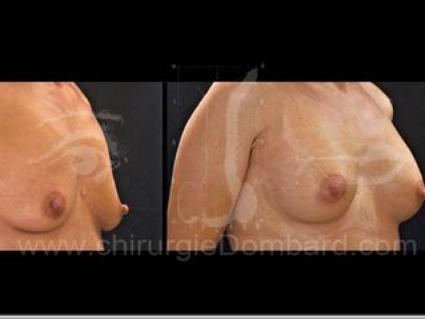 Prothèse ronde rétro-musculaire. 2 mois Post-opératoire.
