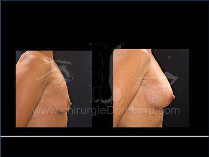 Prothèse ronde rétro-musculaire. 2 mois Post-opératoire. Seins Proteses mammaire