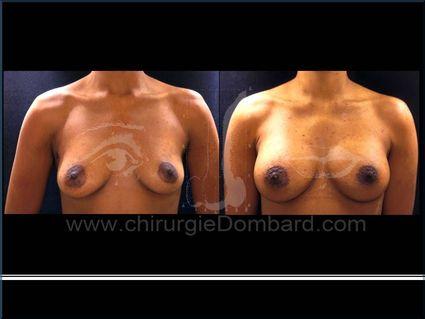 Avant - Après. Vue de face. Prothèses ronde rétro-musculaire.Seins Proteses mammaire