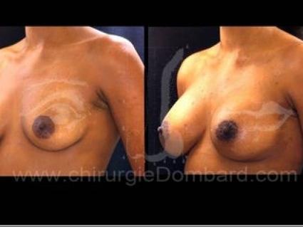 Avant - Après. Vue 3/4. Prothèses ronde rétro-musculaire. Seins Proteses mammaire