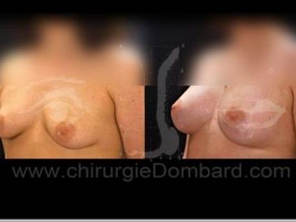 Avant - Après. Vue 3/4. Prothèse ronde rétro-musculaire. 1 an.Seins Proteses mammaire