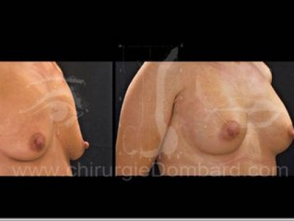Avant - Après. Vue 3/4. Prothèse ronde rétro-musculaire. 1 an. Seins Proteses mammaire