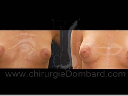 Avant - Après. Vue de face. Prothèse anatomique rétro-musculaire. 6 mois. Seins Proteses mammaire