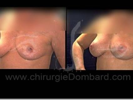 Avant - Après. Vue 3/4. Prothèses anatomique rétro-glandulaire. 1 an Seins Proteses mammaire