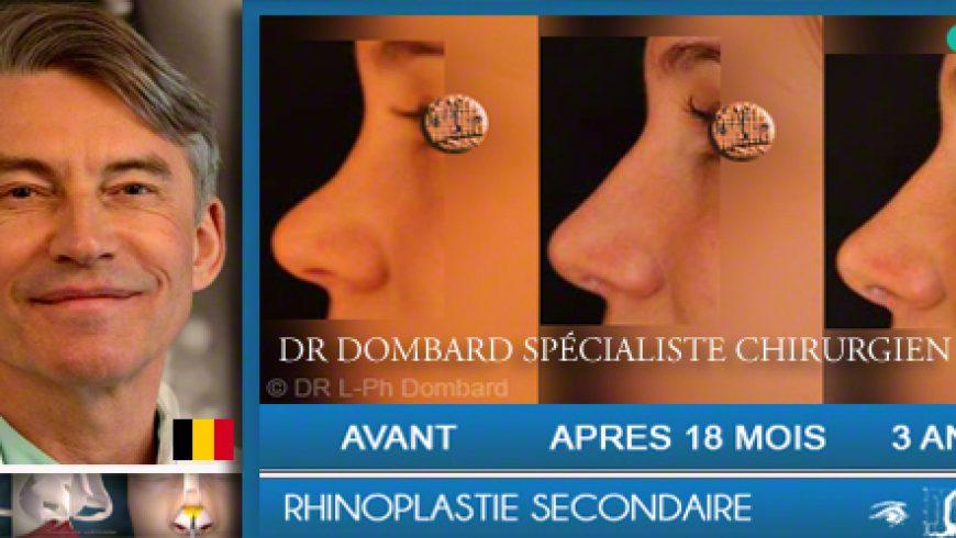 Rhinoplastie par DR Dombard, spécialiste chirurgien esthétique et plastique.