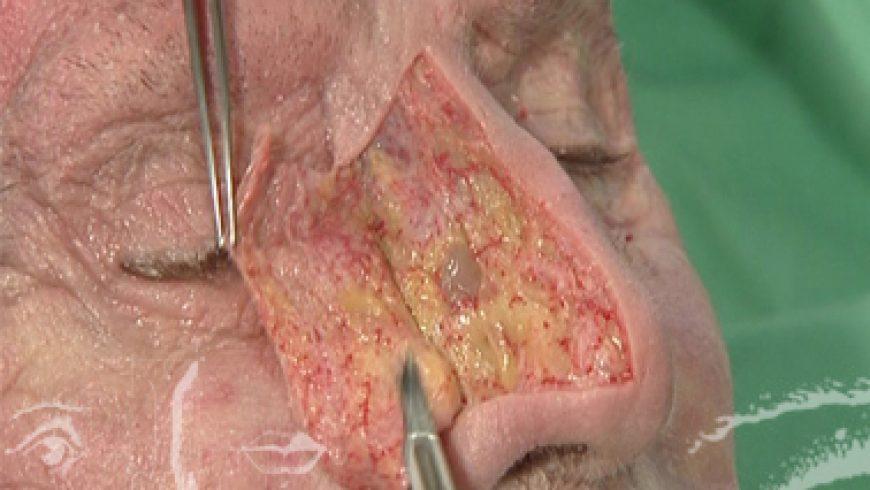 Docteur Dombard préparation Congrès: Rhinoplastie - Anatomie